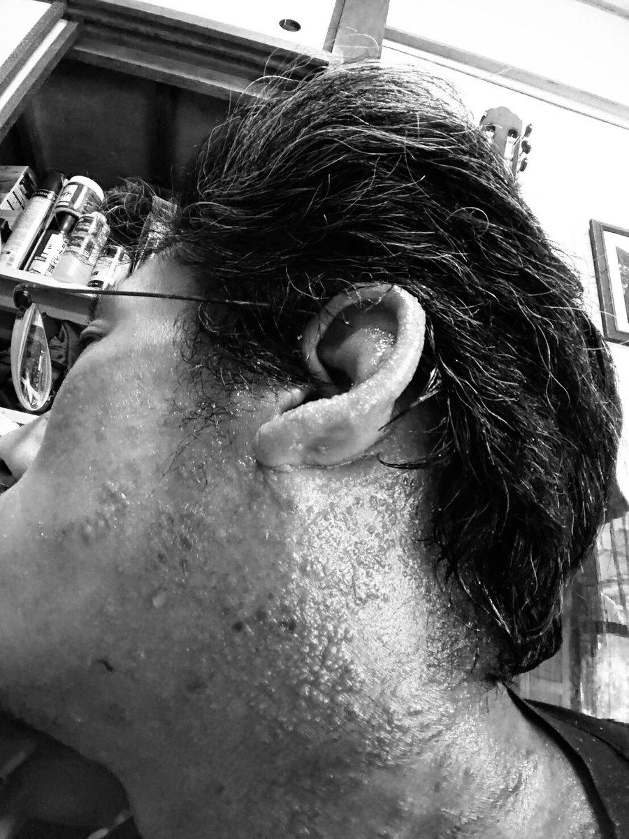 水痘 治療 発疹 症 カポジ 様