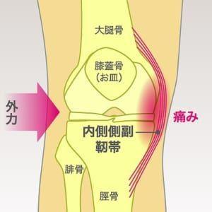 「膝関節内側側副靭帯損傷」の画像検索結果