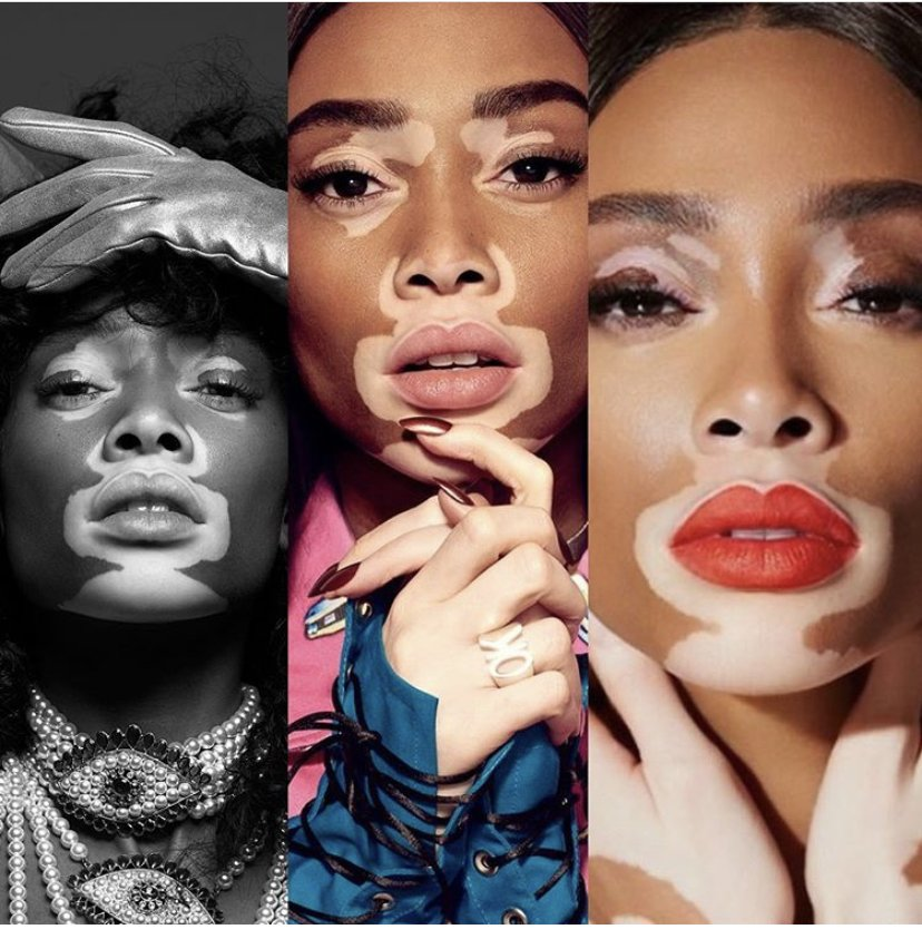 Evolution of Vitiligo is beautiful. Don't be ashamed of what makes you different. - Winnie Harlow ow.ly/vr6j50wK20u