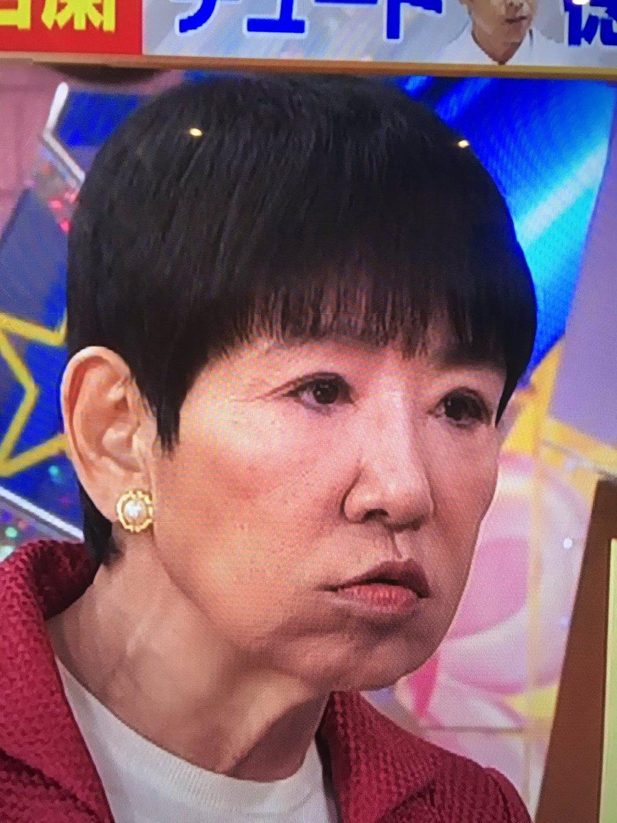 目 手術 和田アキ子
