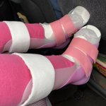 Image for the Tweet beginning: Amelia got new AFOs (ankle-foot