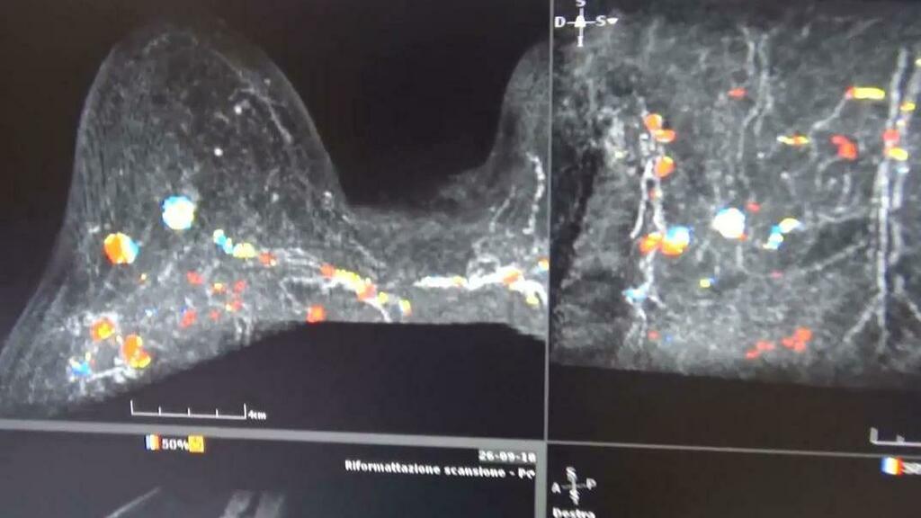 A Treviso il tumore al seno è la prima causa di m...