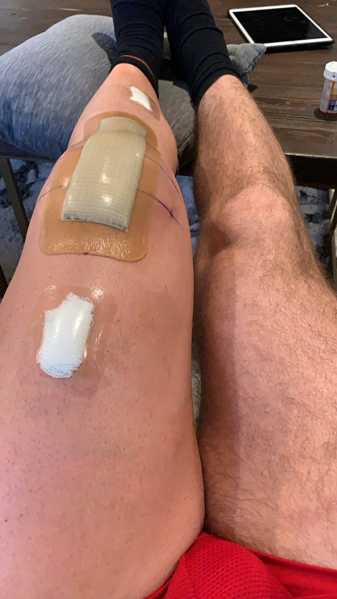 MMA's week out of the cage: UFC Hall of Famer Michael Bisping gets total knee replacement