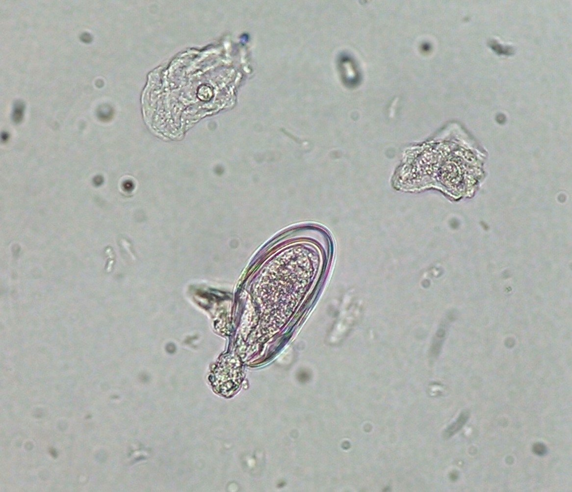Enterobius vermicularis na urina. Urină – sediment | Synevo, Enterobius vermicularis in urine
