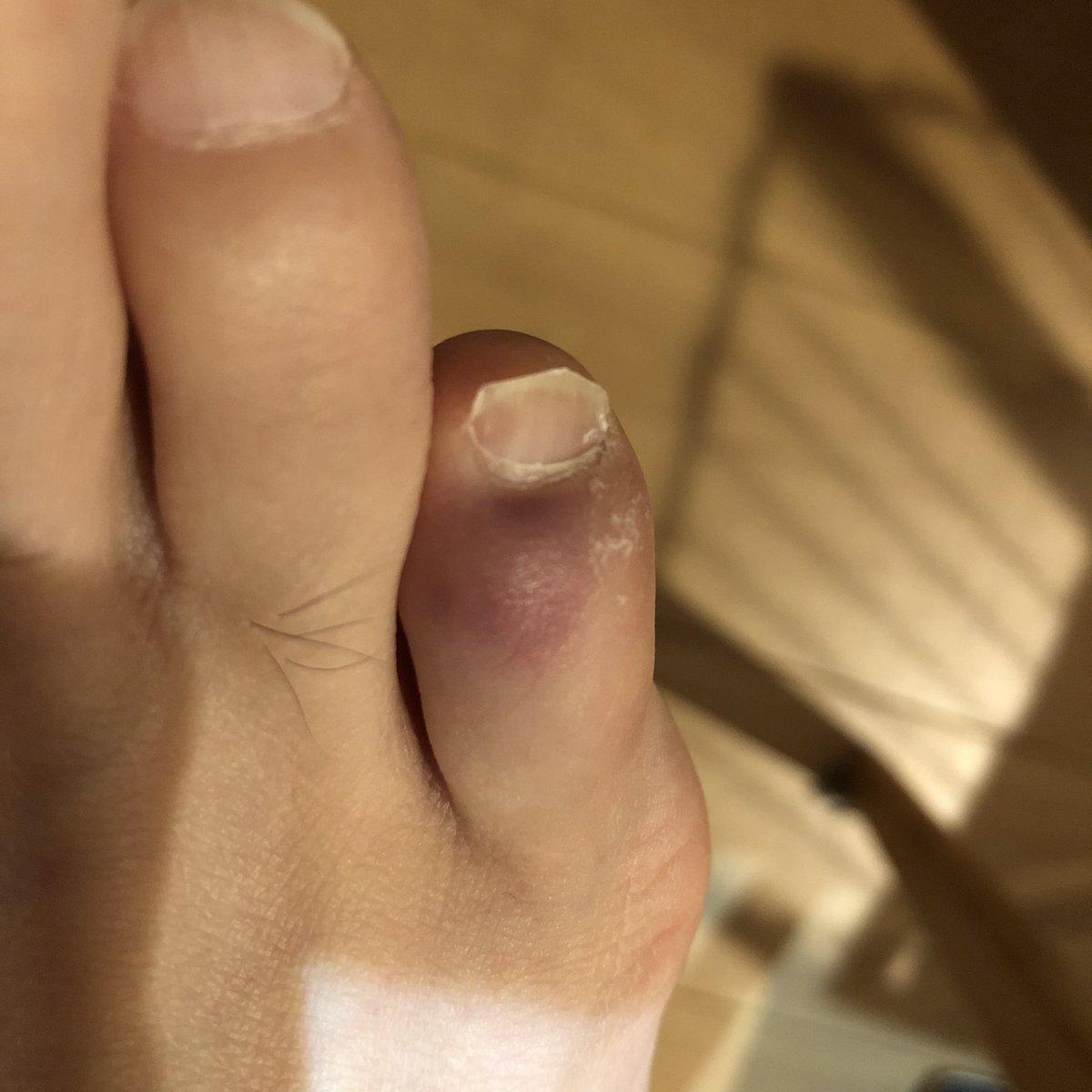 指 足 ぶつけ 内出血 の た