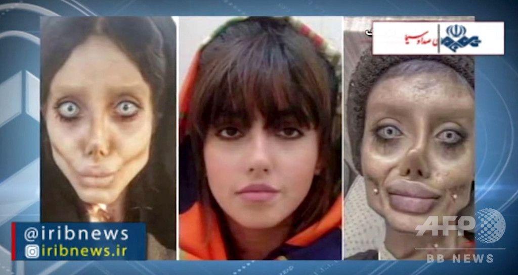 イラン国営テレビは、美容整形で容姿を激変させてゾンビのような顔になり、その後「神への冒涜」を理由に逮捕された有名インスタグラマーのインタビューを放送。母親がやめさせようとしていたにもかかわらず、人気が出ていいねが増えたために続けてしまったと後悔を吐露した。