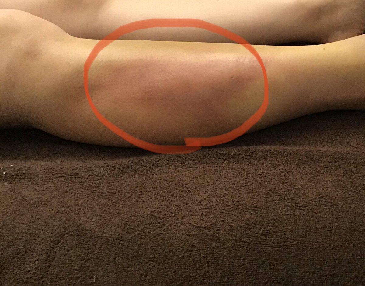 ⭐️感染が疑われる場合⭐️✔️皮膚の色が部分的に変化します✔️患部を押すと指の痕がつきます✔️皮膚科もしくは美容整形外科に相談稀なケースですが遭遇しやすい症例🔸 #インディバ  #脂肪吸引 #術後ケア#美容整形 #感染