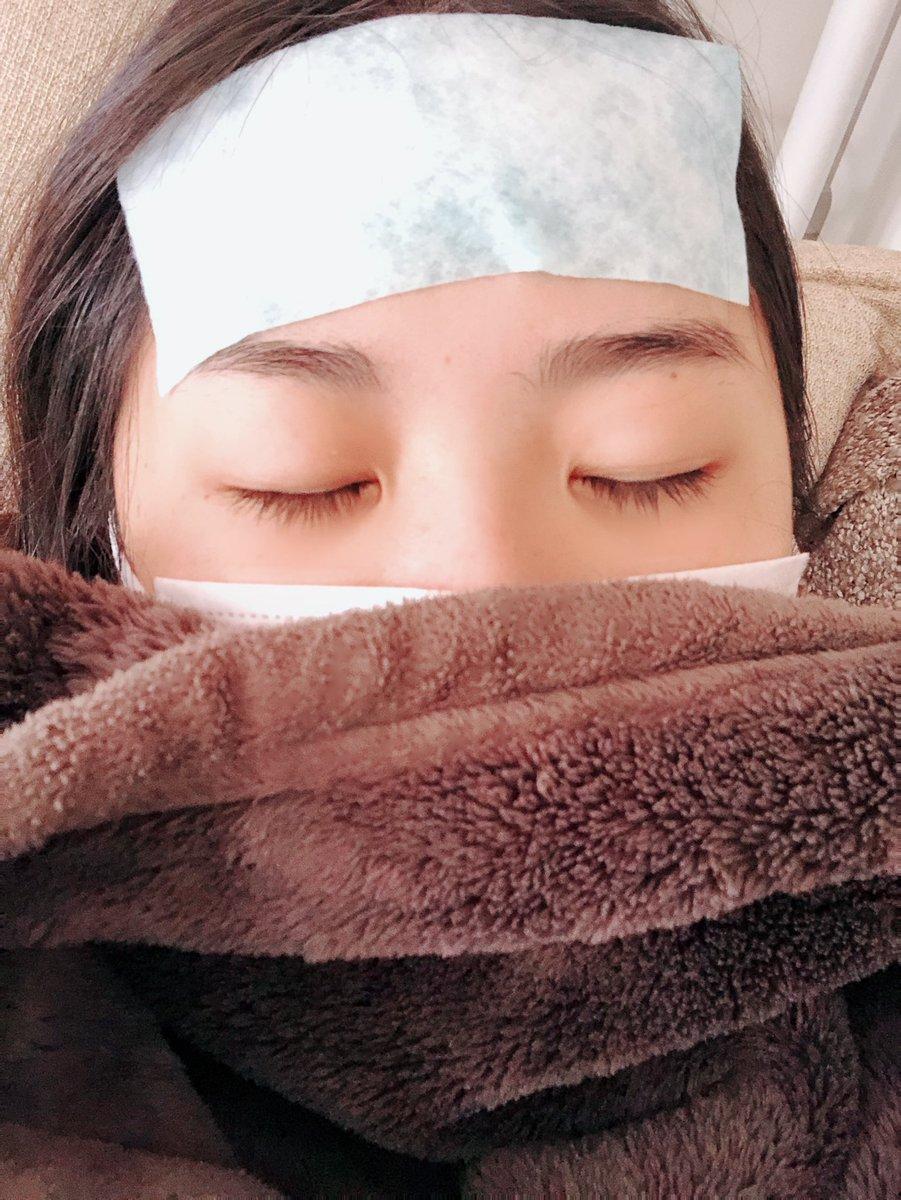 溶連菌 頭痛