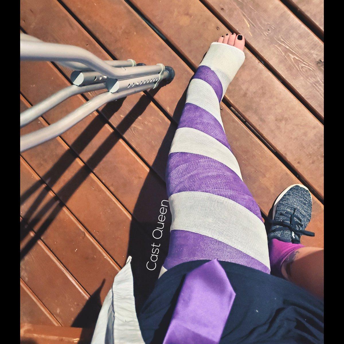 Castcentral Leg Cast