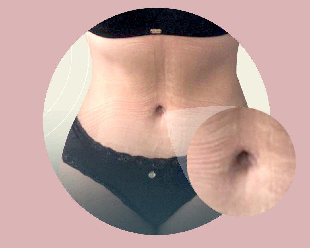 cuantos kilos se pierden con una abdominoplastia