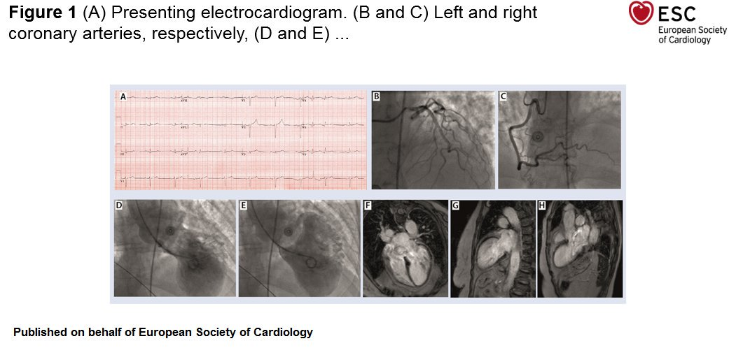 Very interesting case study from @ESC_Journals
