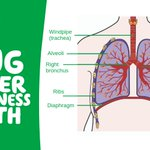 Image for the Tweet beginning: November is Lung Cancer Awareness