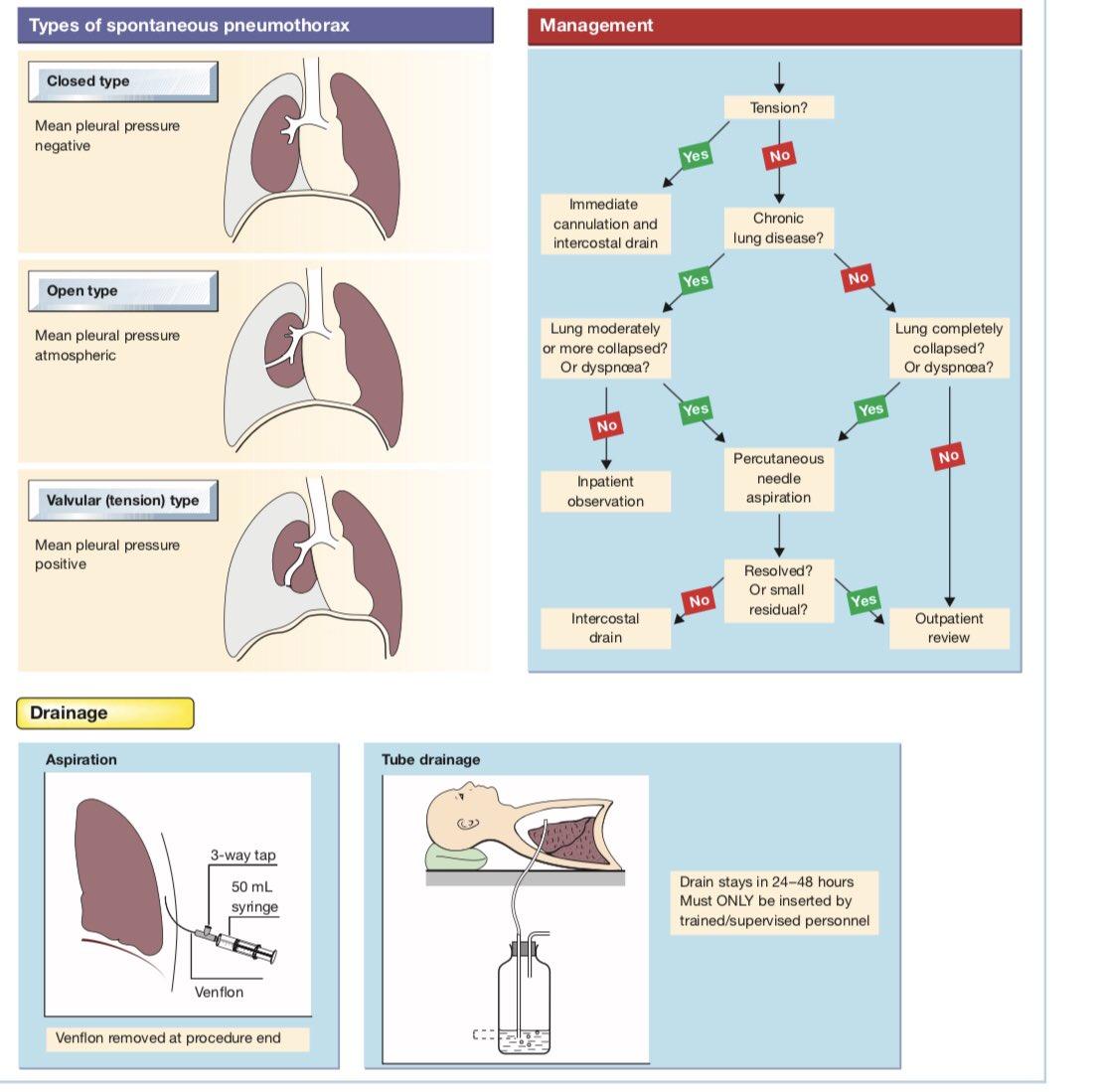 tension pneumothorax nursing - HD1107×1099