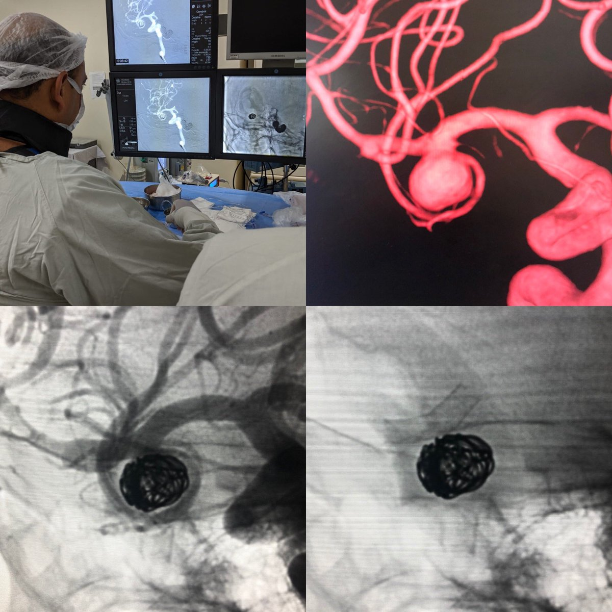 First case using P48 HPC in Brazil. Endovascular treatment of a MCA aneurysm with coils and flow diverted using only Aspirin. Glad to start this research protocol in our hospital. #phenox #usp #fmrp