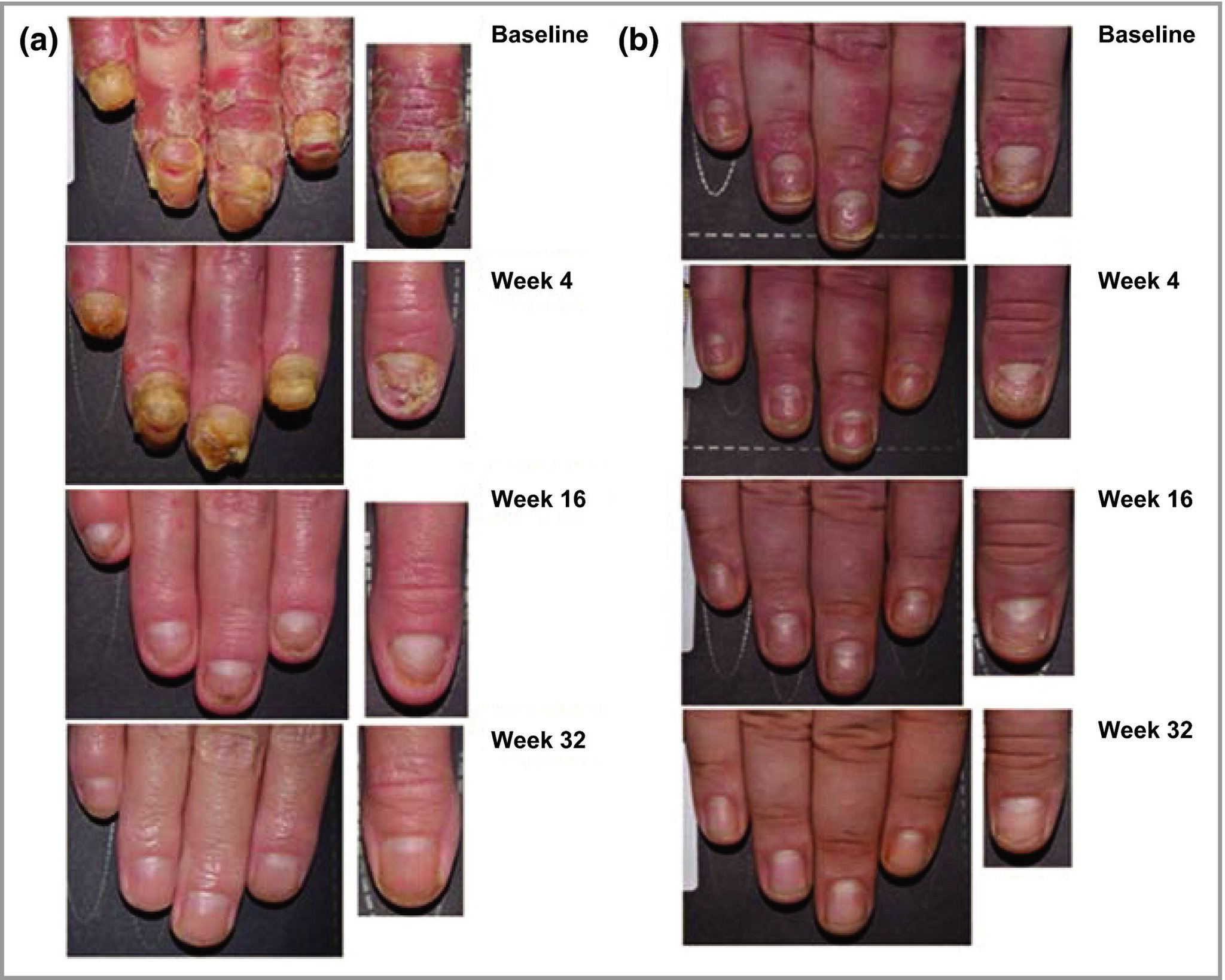 nail psoriasis treatment