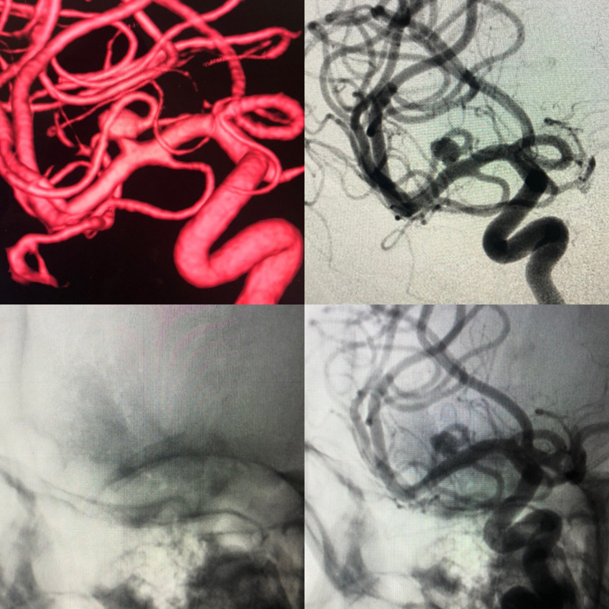 Total of 5 well succeeded procedures performed with P48 HPC  FD using mono-antiagregation with 100mg of aspirin. We are very honored to start this clinical study in Brazil. #phenox #usp #fmrp #aneurysm