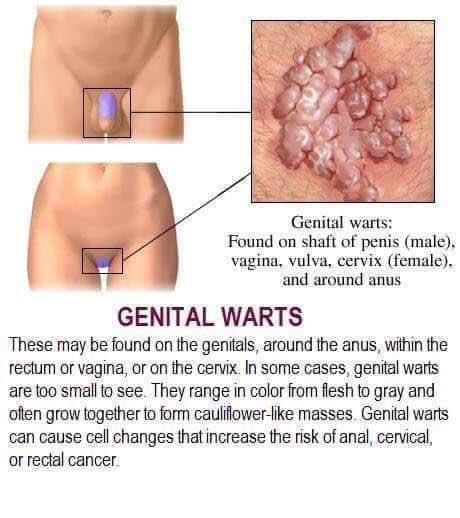nhs hpv genital warts squamous papilloma uvula pathology outlines