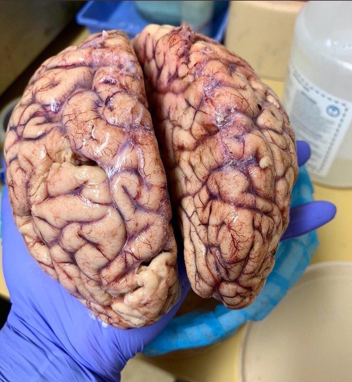картинка мозги в руке легкие, простые срисовки