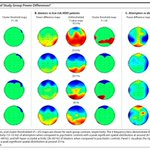 Image for the Tweet beginning: Just published: EEG Characteristics of
