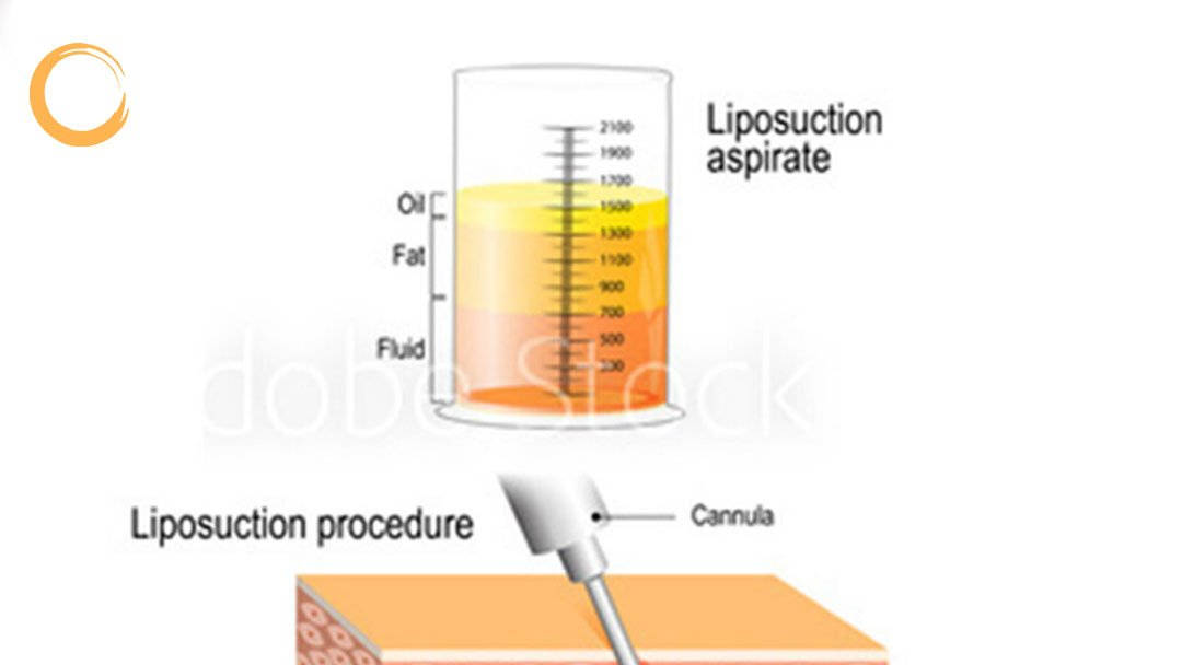 VASER liposuction  https://beforeandafterphotobook.com/vaser-liposuction/…  For more information  WhatsApp: https://wa.me/905380814372  #vaserliposuction #plasticsurgery #vaserlipo #vaserliposelection #liposuctionistanbul #vaser #liposuccionvaser #buttimplant #fatinjection #abdominoplasty #ultrasonicliposuctionpic.twitter.com/6sI8fF44pp