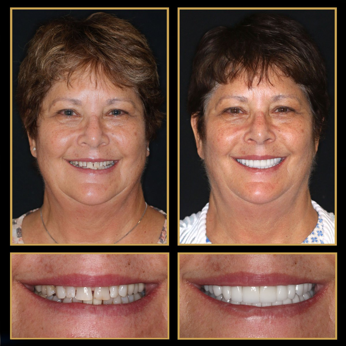 An Austin #smilemakeover can give you a whole new look in just two visits!  #Veneers, crowns, bridges, #DentalImplants and #ReconstructiveDentistry can help restore your smile back to its former glory. http://TheCosmeticDentistsOfAustin.com #CosmeticDentist #CosmeticDentistry #ATXpic.twitter.com/45NRDNo77V