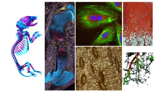 PhDs: interested in mechanobiology? the cytoskeleton? transcription?  The Boerckel Lab @Penn has multiple postdoc positions open! Come join our diverse interdisciplinary team!  Information here:  https://www. med.upenn.edu/orl/boerckella b/open-positions.html  …  What could you work on? A thread:  (Please RT!)<br>http://pic.twitter.com/6zAxfERXvh