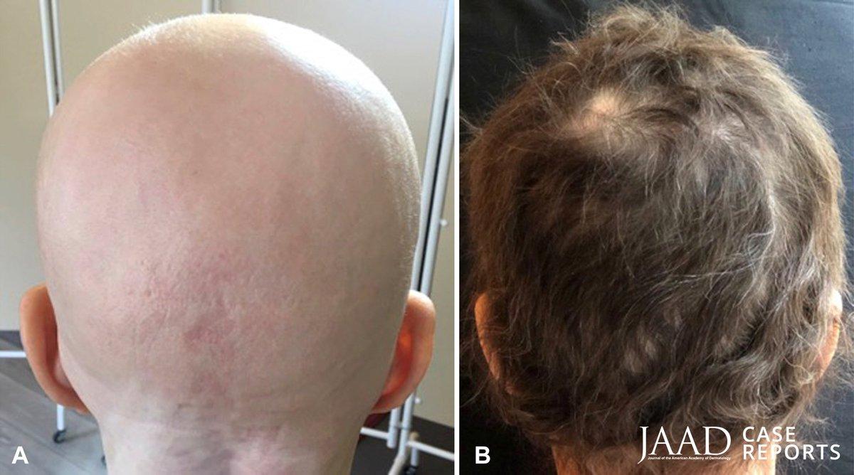 alopecia universalis svenska