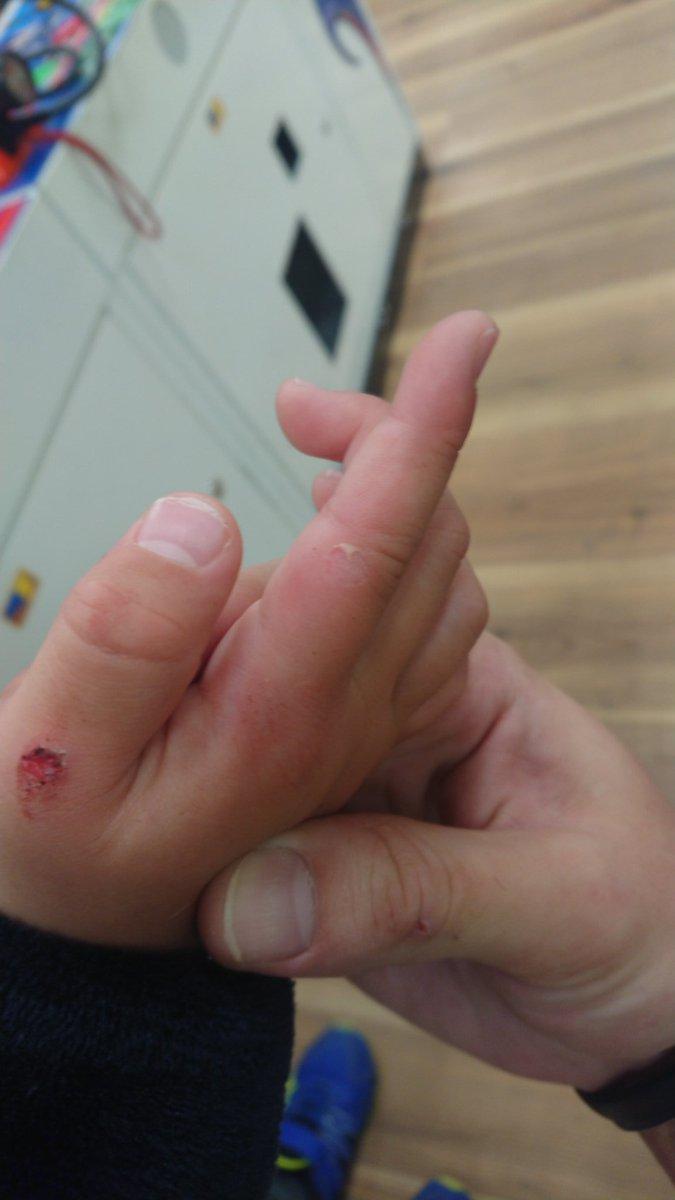むける 子供 指 が の 皮