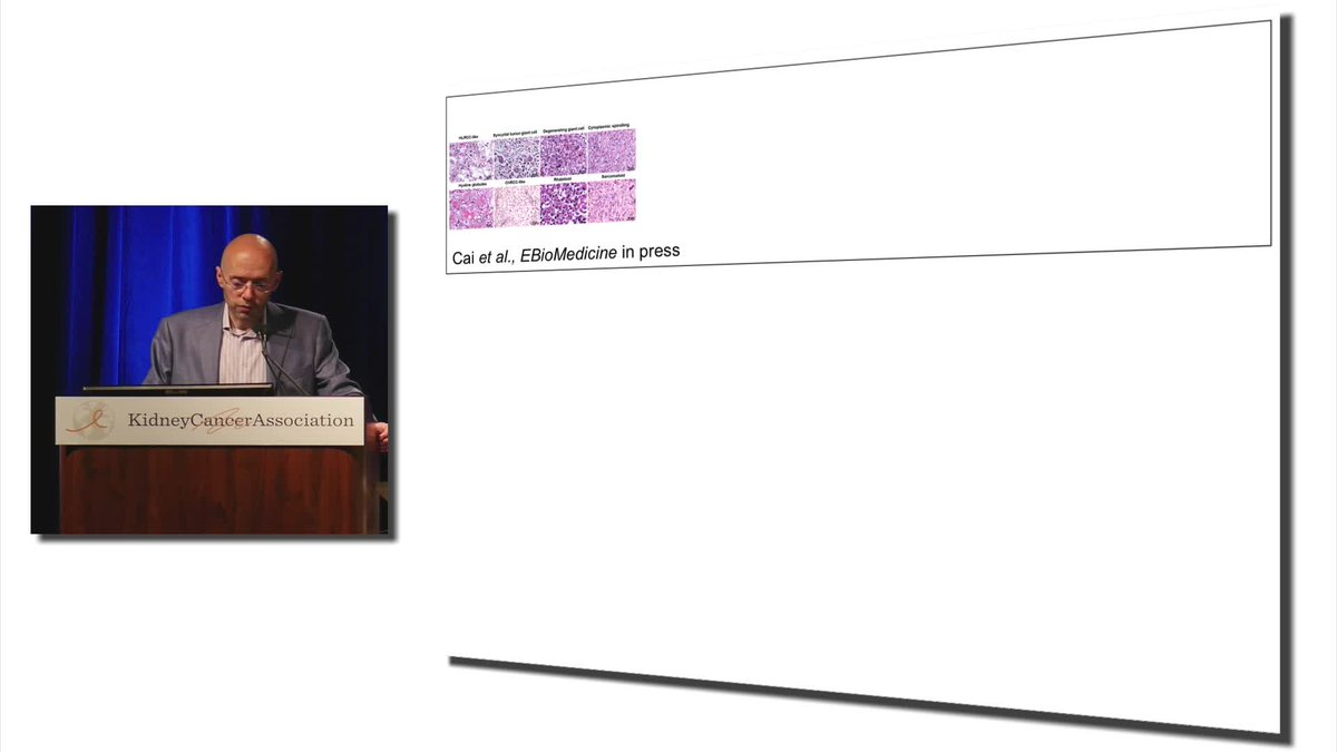 Oncology Tube On Twitter Ut Southwestern Kidney Cancer Program Spore James Brugarolas M D Ph D Director Kidney Cancer Program Principal Investigator Kidney Cancer Spore Sherry Wigley Crow Endowed Chair In Cancer Research