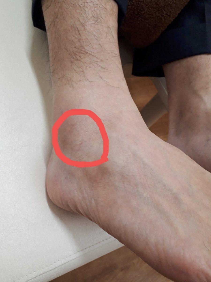痛く くるぶし ない 腫れ