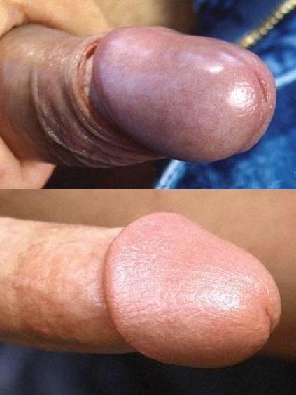 Circumcised or uncircumcised penises