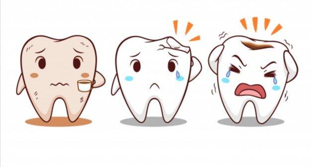 ¿Tienes alguna molestia en alguno de tus dientes? ¡No dejes pasar el tiempo y si ves alguna anomalía en tus dientes acude a nuesta consulta!