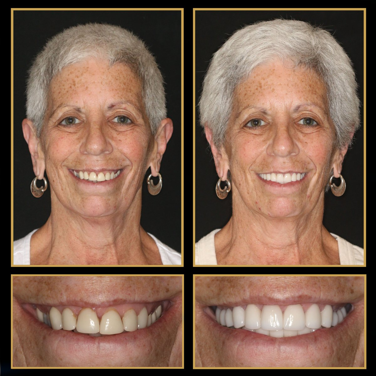 See the difference only a new #smilemakeover can make! Leave it to porcelain #veneers, crowns, bridges, #dentalimplants and #reconstructivedentistry to create that ultimate wow factor! http://www.TheCosmeticDentistsOfAustin.com  #CosmeticDentistry #CosmeticDentist #ATX #TransformationTuesdaypic.twitter.com/A8NhaouoB9