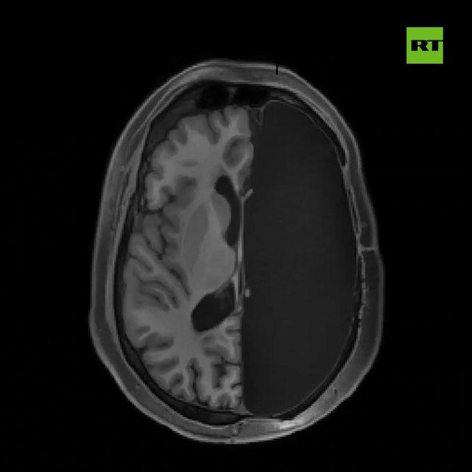 Científicos muestran cómo se reconectan neuronas en personas sin un hemisferio cerebral EJz7-iDW4AAb-p5?format=jpg&name=small