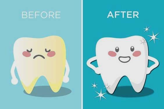Consejo del día: cepíllate los dientes después de cada comida, es decir, un mínimo de tres veces al día. ¡Acuérdate que tienes más personas al lado que no tienen por qué aguantar tu mal aliento! #cepillado #buenaliento #cuidado