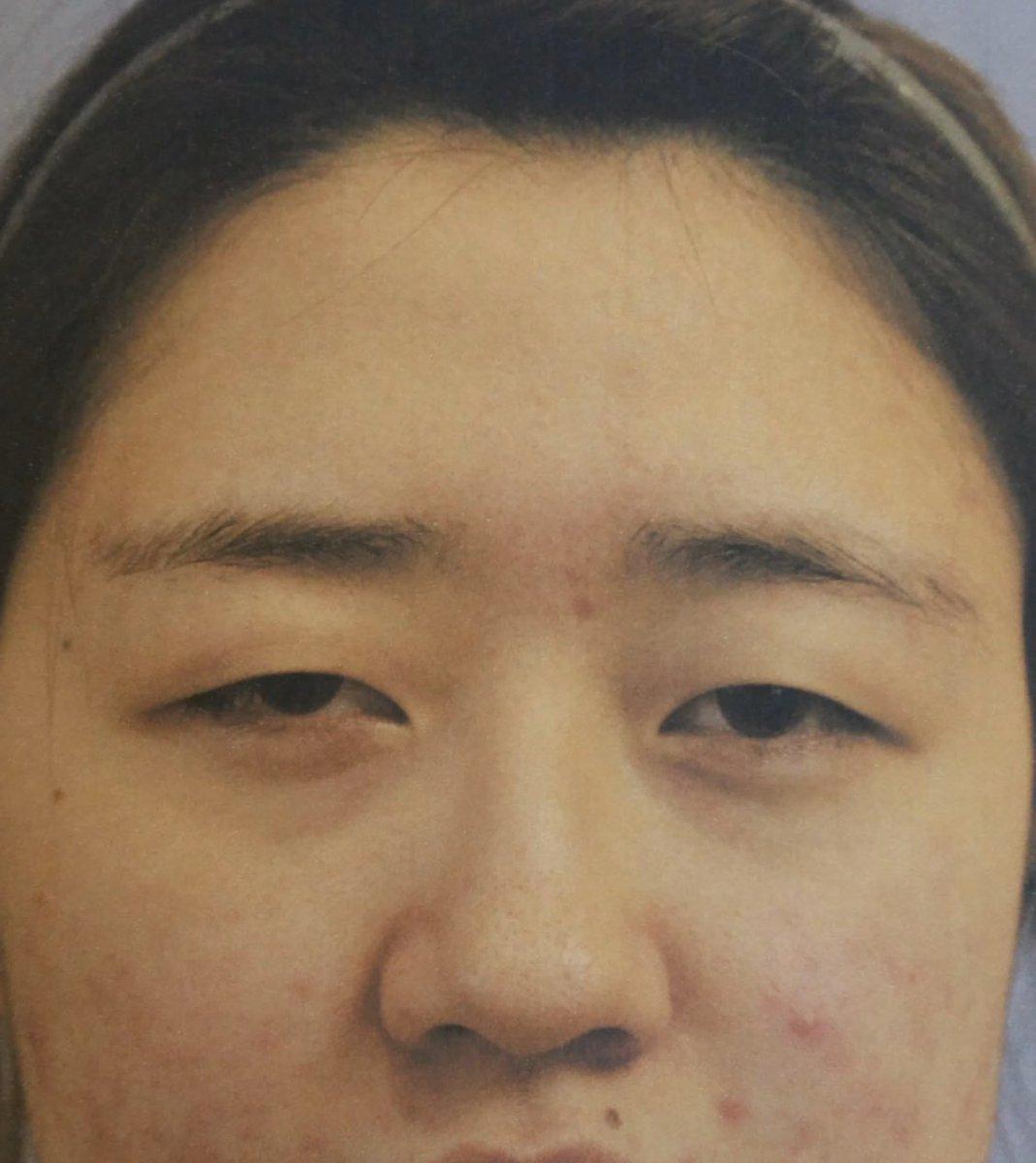 誰もが驚く‼️本当に同一人物かと疑いたくなるような大変身😳😍ユノ整形外科の目・鼻手術✨人生がよりバラ色に🌹❤️👀#目整形👃#鼻整形お問い合わせはLINEへ🔜ブログもチェック😊#韓国整形 #美容整形#症例写真 #ビフォーアフター