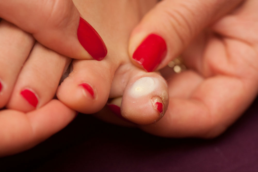You've got a blister on your foot? We know how it will heal up again quickly.  Check our new blog post:  http:// bit.ly/against-bliste rs  …   #beyoubeactive #pjuractivemyskin #myskin #niemehrblasenpflaster #pjuractive #nochafing #antichafing #stopblisters #stopchafing #noblisters<br>http://pic.twitter.com/Yf7HOjOQT2