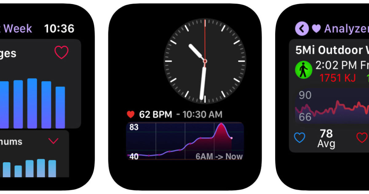 Heart Analyzer's new Apple Watch app puts detailed data on your