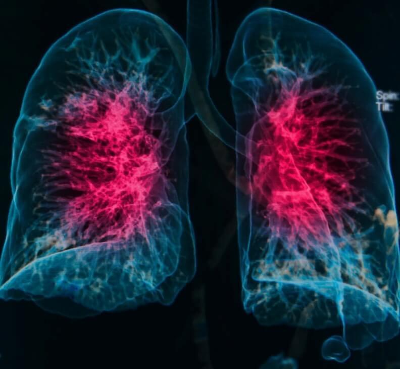 Картинки легких пневмония