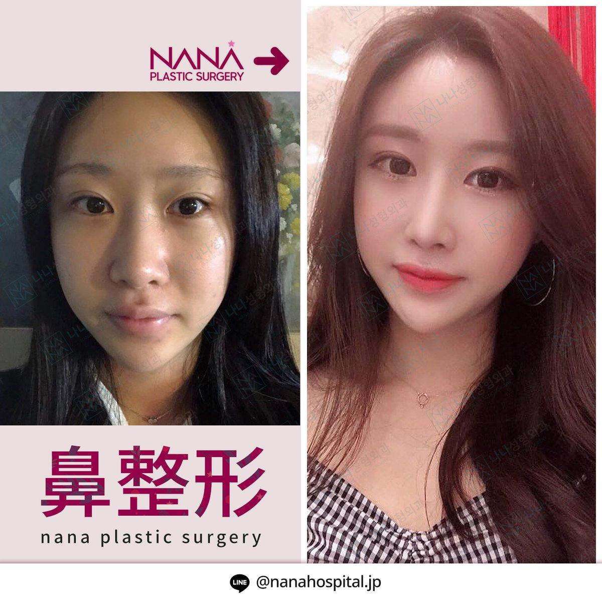 韓国鼻整形