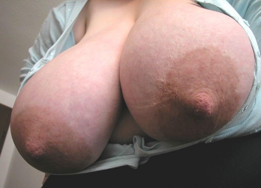 I have bumps around my nipples