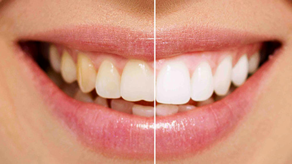 Sorriso: gli alimenti che macchiano i denti https:...
