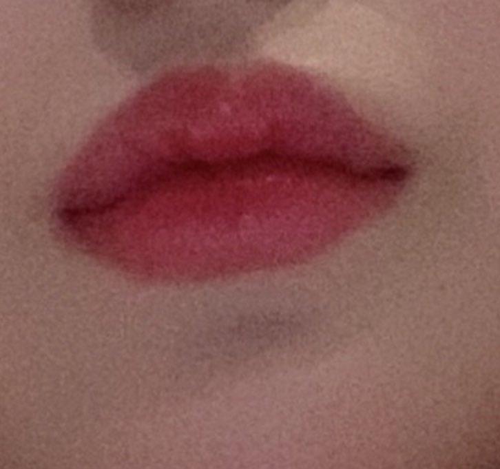 ぼってり無表情に見えていた唇…💋キュッと上がった口角✨笑顔が素敵な唇美人に🥺【手術内容】✔️口角挙上韓国での整形をお考えの方は滞在中完全サポートのKBMへ💝📩