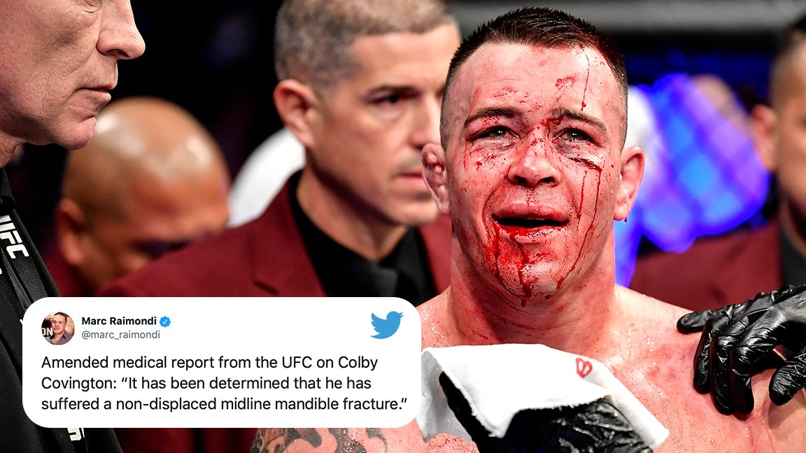 UPDATE: Colby Covington did in fact suffer a broken jaw at #UFC245 (via @marc_raimondi)