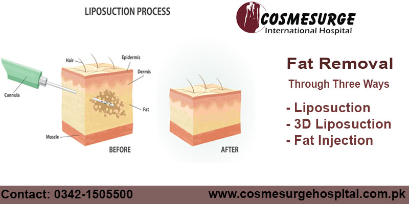 Book Your Appointment Now! Inbox us here for details & Appointments or also, call at 0342-1505500,051-4452730-31 https://lnkd.in/fSqEG2S https://lnkd.in/f-Btq6W #liposuction #nonsurgericaltreatment #fatinjection #beauty #reshapeyourbody #beautyischoice #skin #part #treatmentpic.twitter.com/KQnHtMvUt5