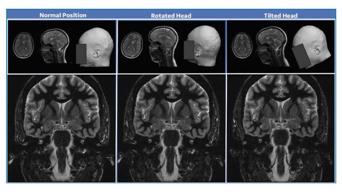 GE Healthcare's AIRx™ Tool Accelerates Magnetic Resonance Imaging using Intel® AI Technologies - Intel AI