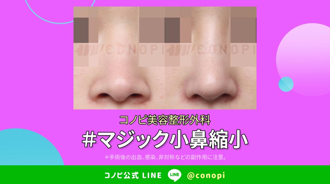 韓国鼻専門🌺コノピ美容整形外科大きい鼻でお悩みの方~✋マジック小鼻縮小は自然な鼻の穴の形を作ります🤗小鼻縮小の傷跡や副作用の発生率も低く患者様の満足度も高い施術法です💕洗練された自然で小さな鼻先をお作りします☺️💫LINE ID 🌻 @conopiお問合せ 🌻