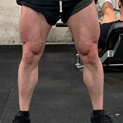 Day 213.. I train them but not nearly as hard as I should be, that changes today.. limitless legs, let's fkn go.. #legs #legday #discipline #desire #strength #muscle #mindset #growth #gains #training #workout #gym #fitness #fit #big #bodybuilding #physiq… https://ift.tt/2rm7Rja