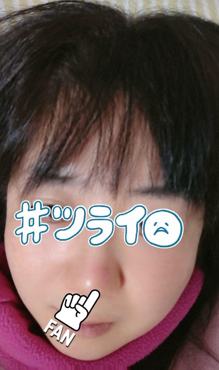 赤い 頭 鼻 の