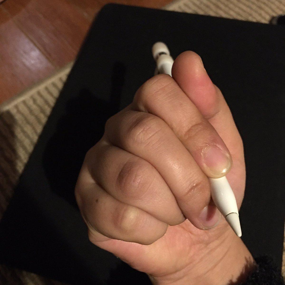 治す ペン だこ